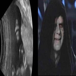 Imperador Palpatine ultrassonografia
